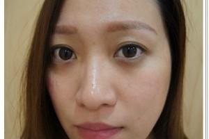 【台中縫雙眼皮】私心推薦台中潘朵拉整形外科診所的韓式訂書針雙眼皮手術,價錢也相當公道,好滿意我現在的雙眼皮唷~超自然超有神! @ 嘎拉嘎拉夏日祭典! :: 痞客邦 PIXNET ::