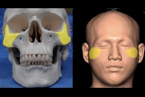 削骨手術|手術前後比較|顴骨,下顎骨,下顎骨角 - 凡登整形外科