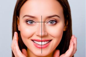 矯正牙齒美學再升級!「數位微笑設計X隱適美」集矯正美學於大成 | WECARE・康世維口腔美學