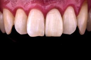 什麼是全瓷冠牙套?2021全瓷冠優缺點與價格大解密-樂沛牙醫診所