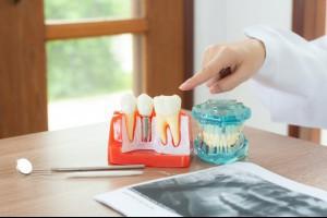 植牙有哪些注意事項? 牙醫告訴你6個一定要知道的重點   用藥停看聽   新聞   元氣網