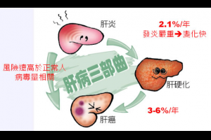 新聞資訊feed站: 中醫如何治療肝硬化與肝腫瘤